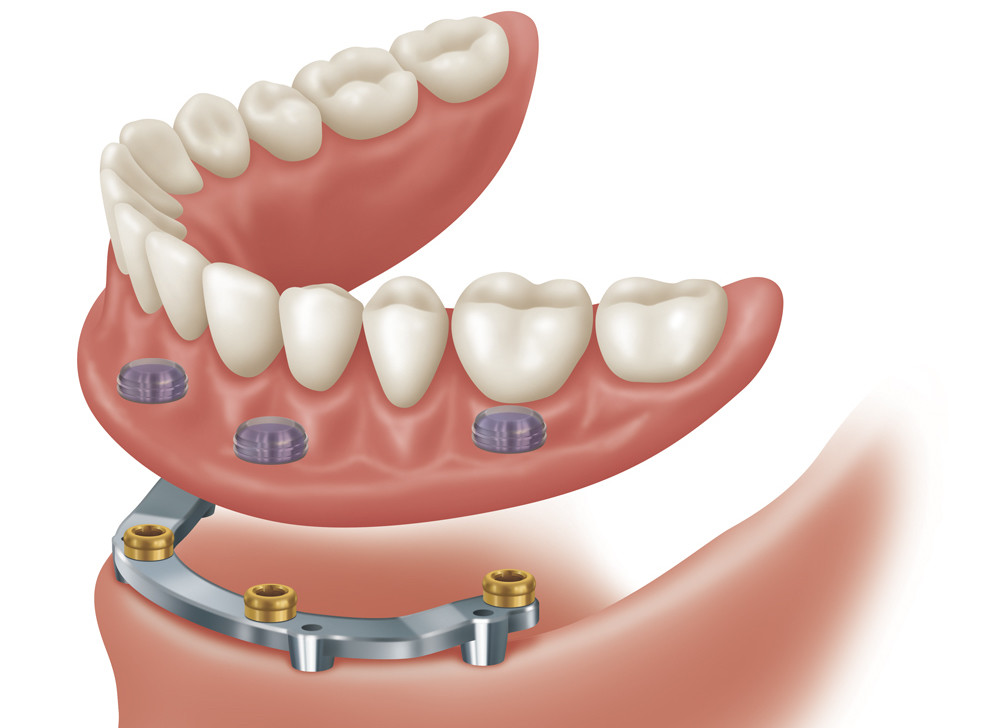 implant denture care instructions