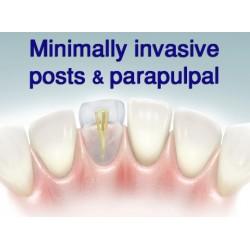 dental fibre post instructions
