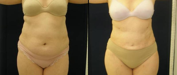i lipo before and after instructions