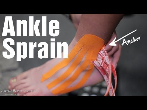 ankle sprain care instructions